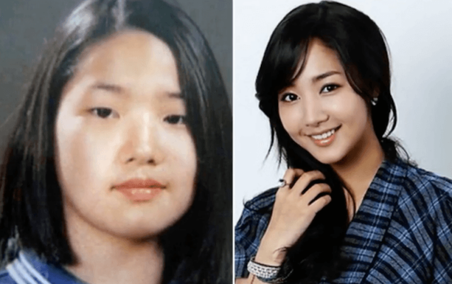 Checkout these incredible plastic surgery transformations
