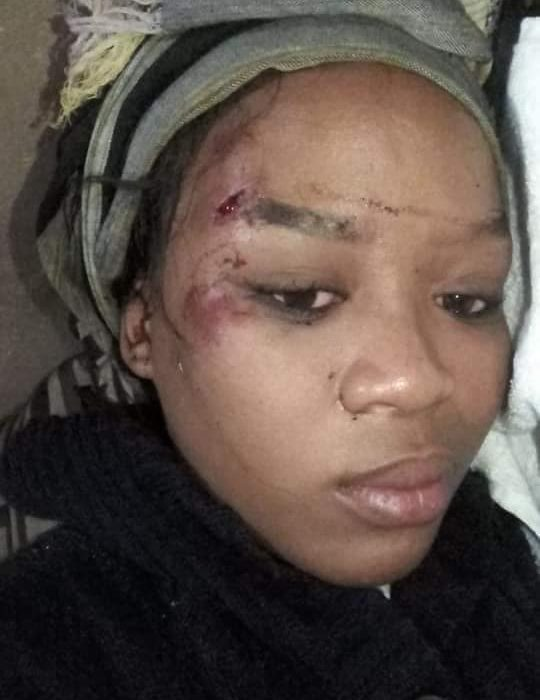 South African lady's husband runs her over with his car