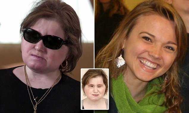 Youngest US face transplant recipient shares her recovery story