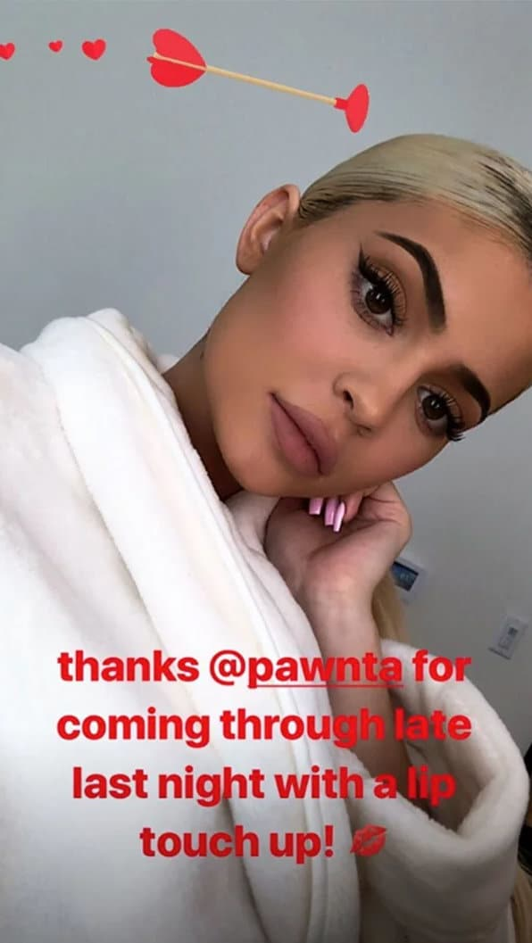 Kylie Jenner gets back to using lip fillers
